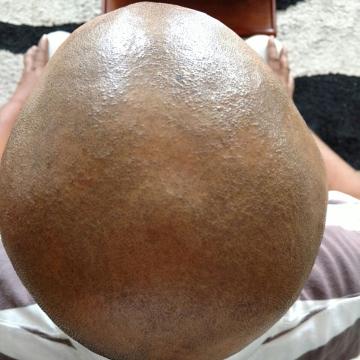 Los tratamientos de los cabello la caída por la miel